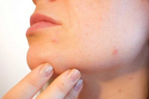 De oplossing voor een vette, onzuivere huid.
