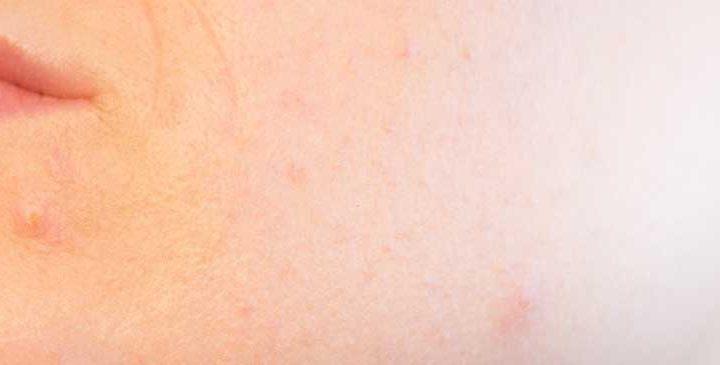 Een vette huid, oorzaak en verzorging