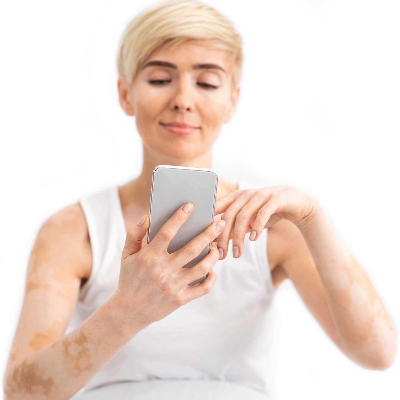 Vrouw met Vitiligo - LIN Skincare