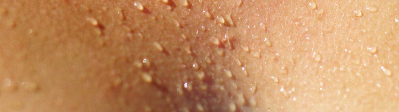 Zweet op de huid